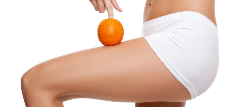 Cellulite entfernen